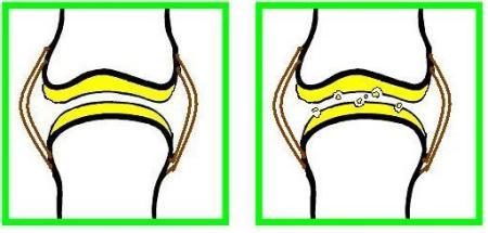 slijtage kraakbeen